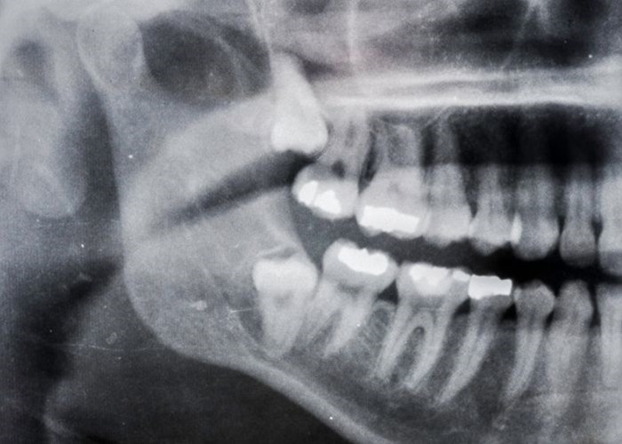 Wisdom Teeth and Other Extractions