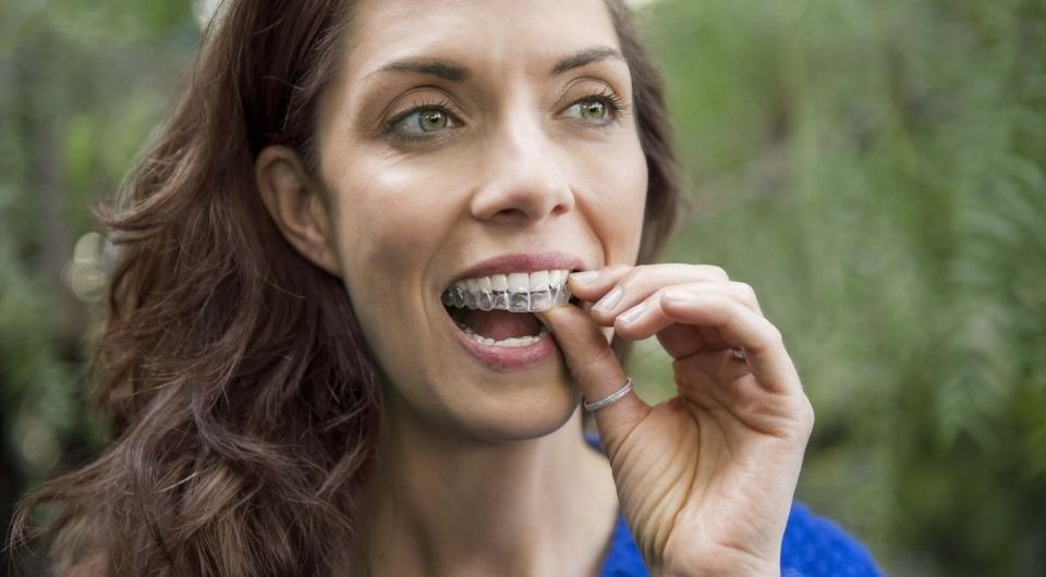 What's the Difference Between Invisalign® and Clear Aligners