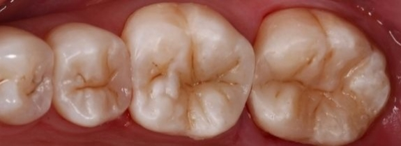 Direct Composite Fillings