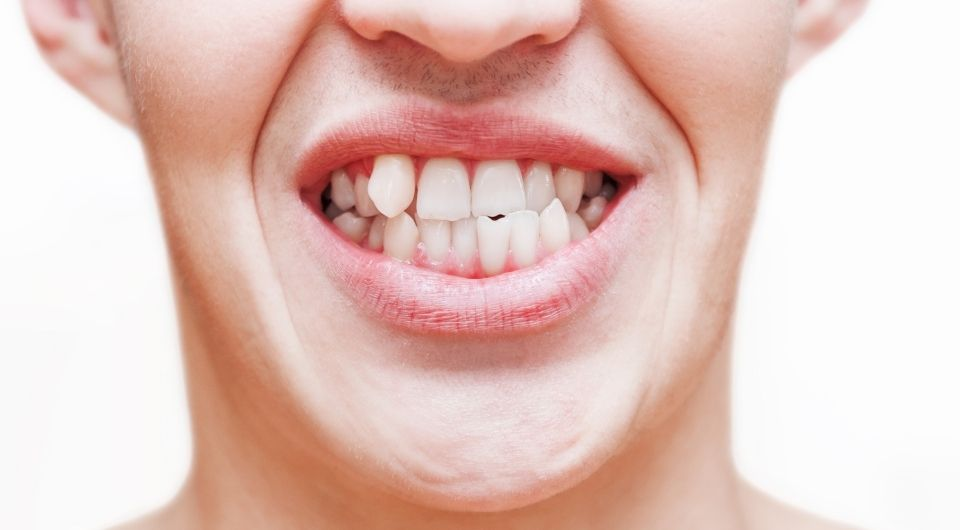 Lower risk of tooth damage